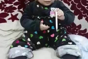 أمير الشرقية يوجه بعلاج ريم القحطاني بمستشفى الملك فهد