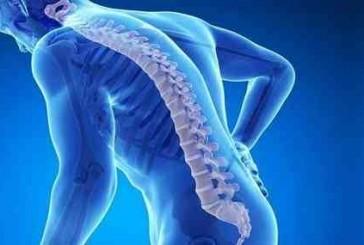 6 عادات خاطئة تسبب الإصابة بـ #هشاشة_العظام