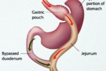 عملية gastric bypass لمنع وعلاج داء السكري نوع 2