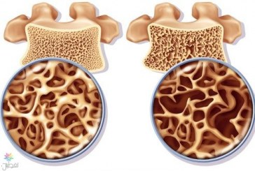 فاعلية الخلايا الجذعية في علاج هشاشة العظام