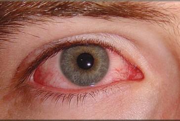 مرض المياه الزرقاء في العين يسبب العمى