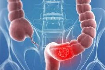 5 توصيات لتجنب سرطان القولون