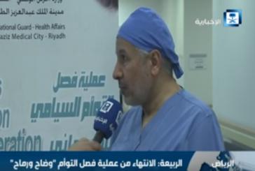 نجاح عملية فصل التوأم السوداني «وضاح ورماح» (فيديو)