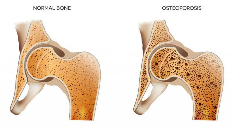 5 نصائح لتفادي هشاشة العظام