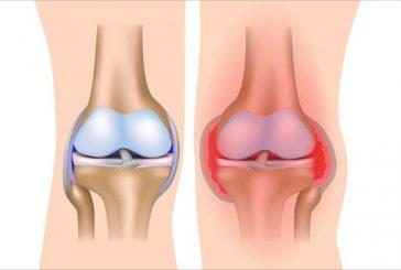 6 علاجات طبيعية لإلتهاب المفاصل الروماتيزي