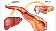 علاج طبيعي لارتفاع الكولسترول في الدم