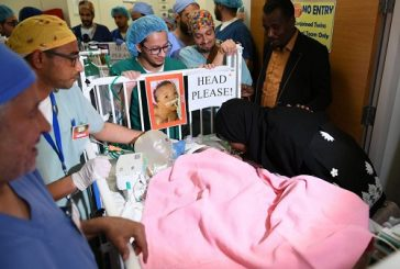 """الفريق الطبي والجراحي لعمليات فصل التوائم السيامية ينجح في فصل التوأم السيامي السوداني """"جود وجنا"""""""