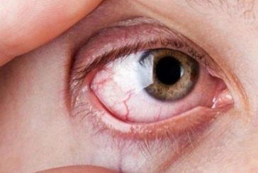 """""""الصحة"""":أعراض «جفاف العين».. ومتى تجب زيارة الطبيب؟ (إنفوجراف)"""